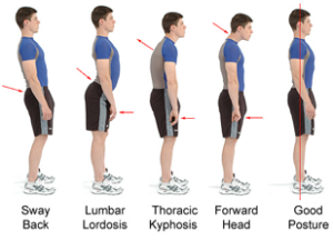 Bad-Posture-Examples thoracic outlet syndrome revolution health centre numbness in arms and hands massage colac camperdown