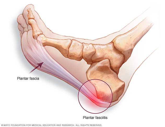 plantar fascia colac camperdown revolution health centre