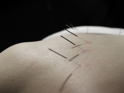 dry needling myofascial trigger points massage remedial myotherapist